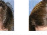 زرع الشعر بالطرق الحديثة الراس والحاجب واللحية والشوارب - صورة مصغرة