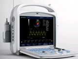 500A Laptop Color Doppler Digital Ultrasound Scanner - صورة مصغرة